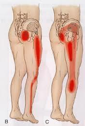 坐骨神経痛の痛みの場所